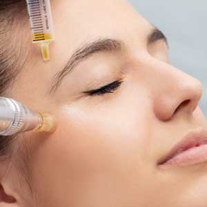 Micro-Needling in Stettfurt (Frauenfeld)